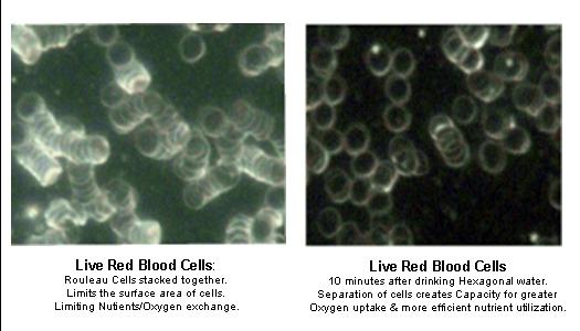 Blood comparison before and after drinking Kangen Water